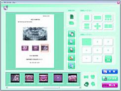 ADR NEOの簡単な印刷機能
