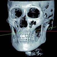 Alphard VEGAは、頭部のほぼ全ての領域を撮影できる