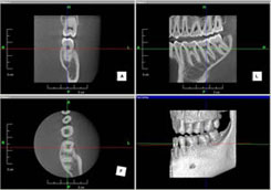 患者さんも理解しやすいというMPR画像表示