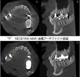 NEODYNA MAR(金属アーチファクト低減)