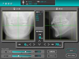 CT撮影エリアを正確に設定できる「予備撮影機能」