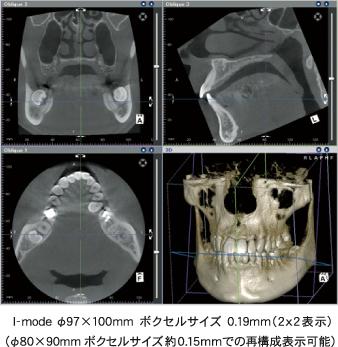 I-mode φ97×100mm ボクセルサイズ 0.19mm (2x2表示)(φ80×90mm ボクセルサイズ約0.15mmでの再構成表示可能)