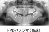 FPDパノラマ(高速)