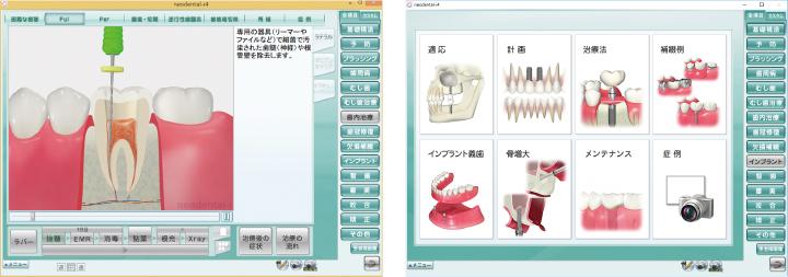 カウンセリング・アニメーション・ソフトウェア NEODENTAL-i