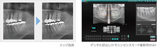2D画像処理機能一覧